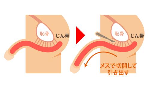 切る長茎手術