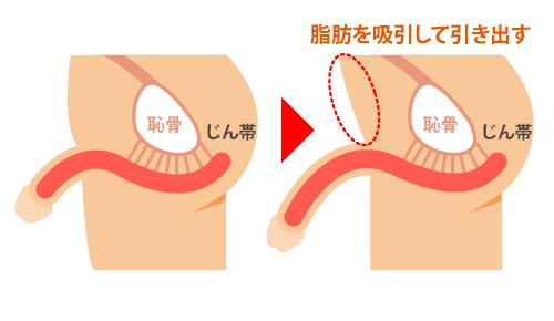 脂肪吸引式長茎手術