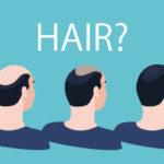 増大サプリと薄毛の関係